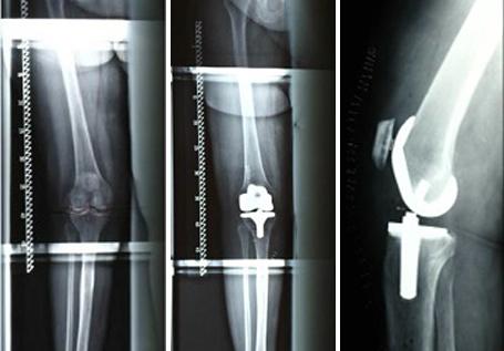 Vollschlittenprothese