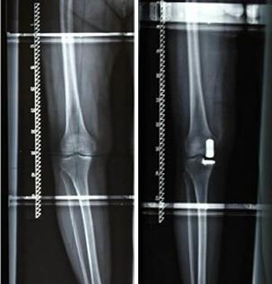 Halbschlittenprothese
